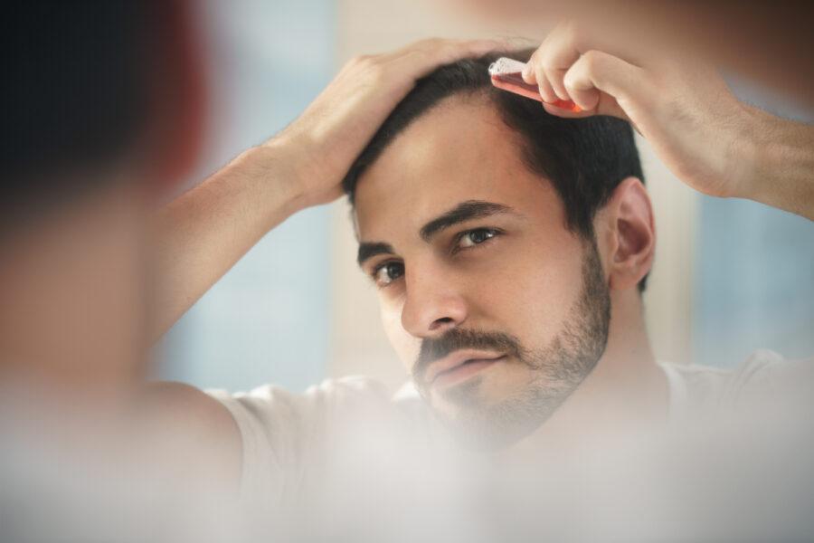 waarom mannen vroeg kaal worden